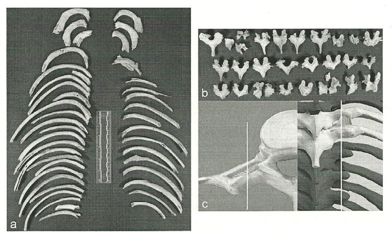Rib breakage and peeling marks on vertebrae recovered from Herxheim